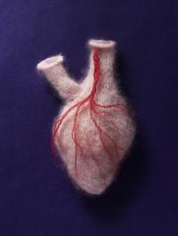 Sarah Illenberger (n.d.) 'Soft Heart'
